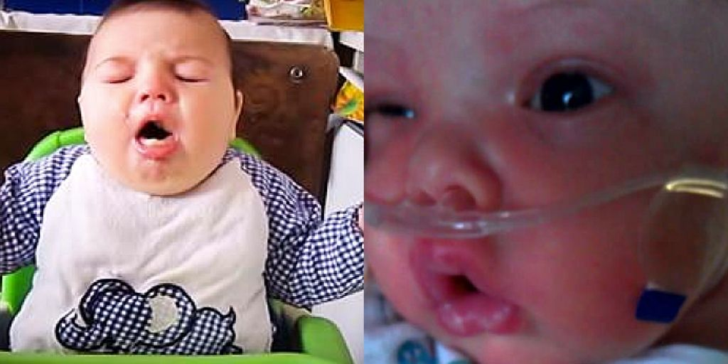 15 Signs The Baby Can't Breathe   BabyGaga